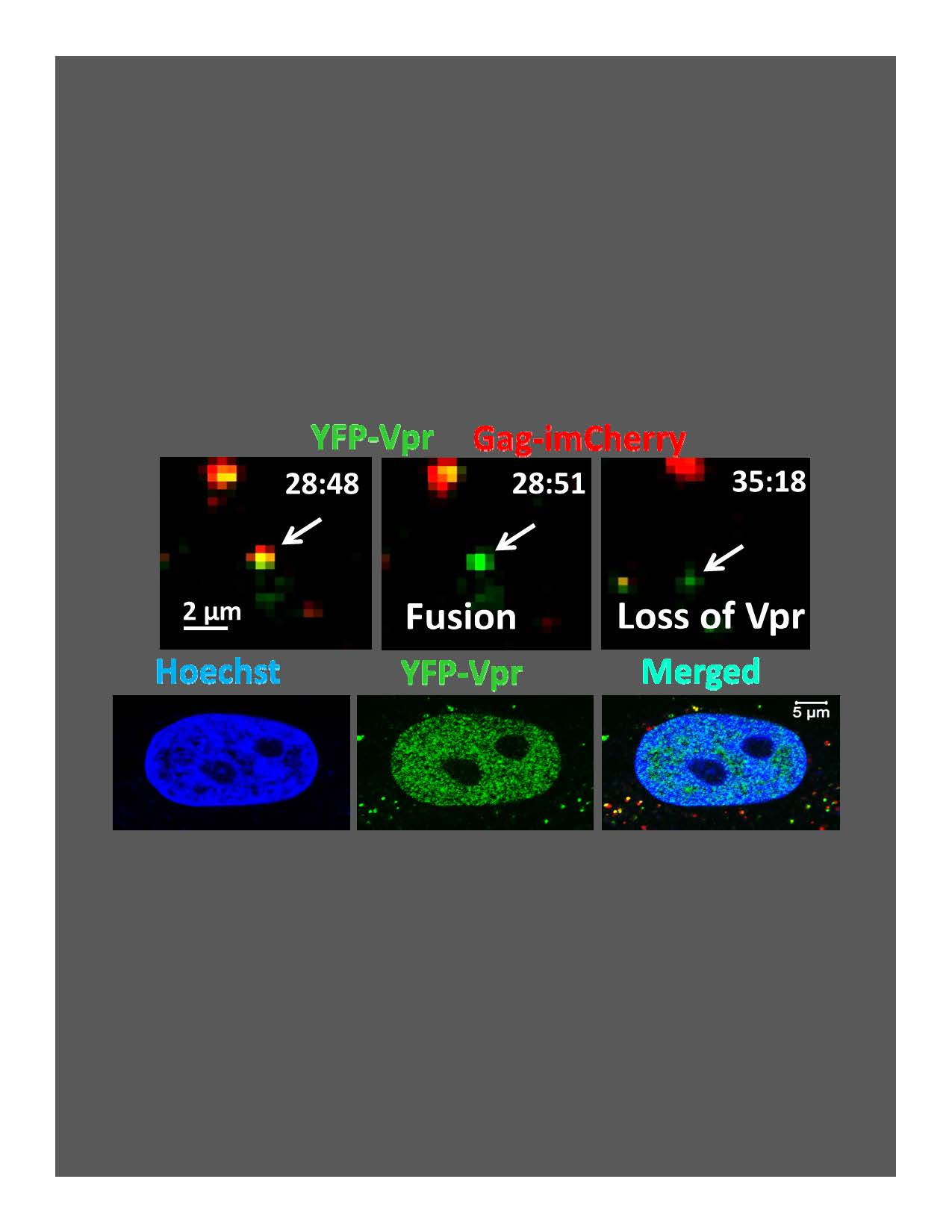 HIV Vpr released from incoming virions accumulates in the nucleus Carousel Photo