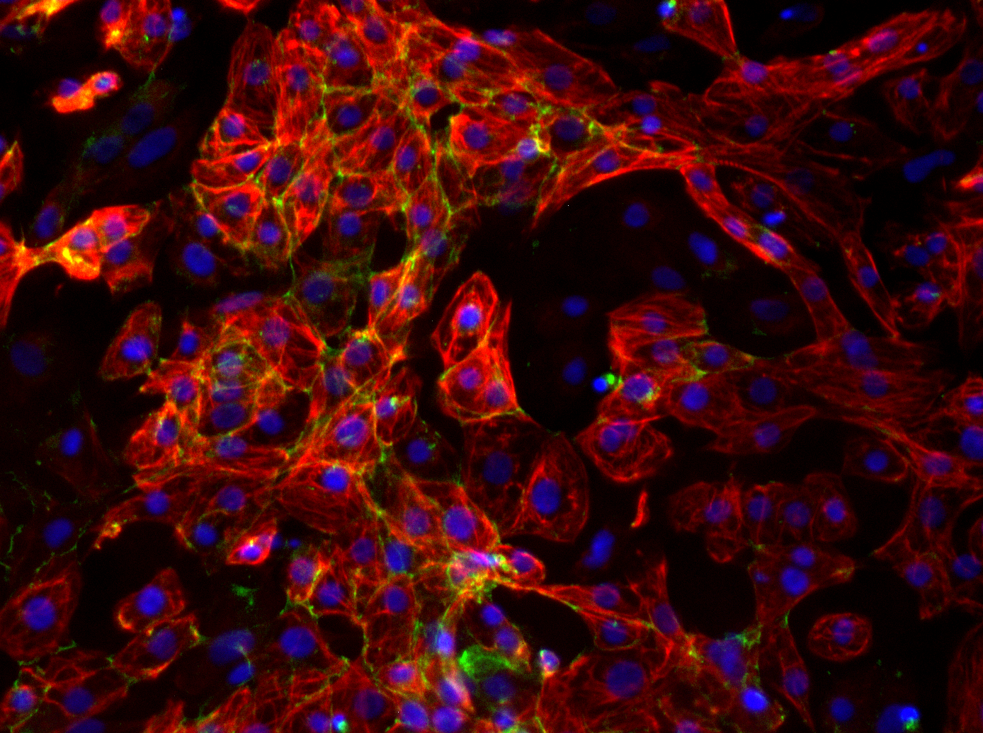 Cardiomyocytes derived from human pluripotent stem cells Carousel Photo